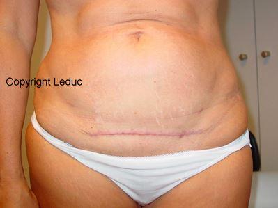 Cicatrice d'abdominoplastie1