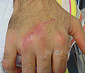 Cicatrice de section tendineuse traumatique